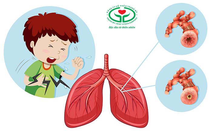 Đau ngực trái là bệnh gì? – Bệnh phổi
