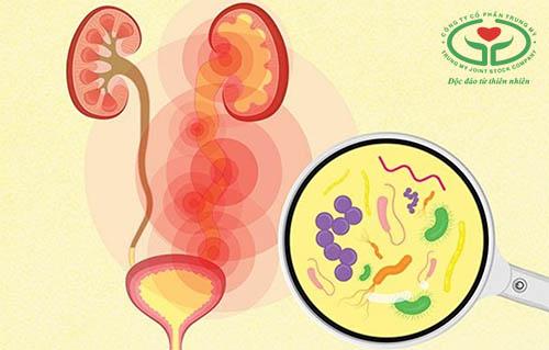Viêm đường tiết niệu là thủ phạm phổ biến gây tiểu ra máu sau khi quan hệ