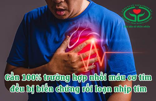 Rối loạn nhịp tim là biến chứng nhồi máu cơ tim phổ biến nhất